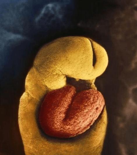 8 дней. Эмбрион, прикрепленный к слизистой матки 5