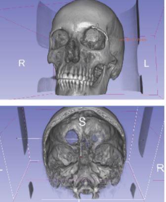 радиолог измерил опухоль под другим углом