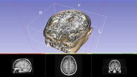 программа InVesalius позволяет конвертировать  DICOM-файлы в 3D изображения
