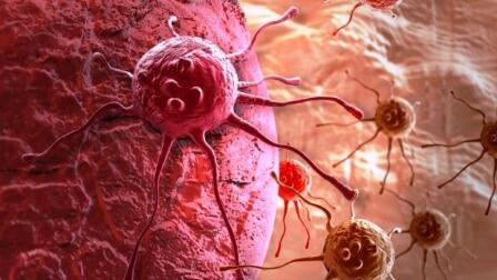Молекулы SGLT2 сигнализируют о возникновении раковой опухоли