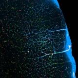 участок мозга