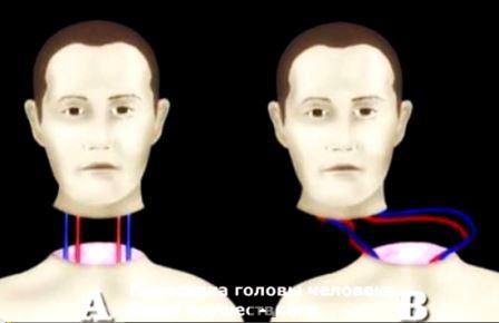 Операция по пересадке головы, это уже возможно сделать?
