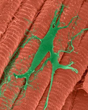 Сердечная мышца и клетка Пуркинье, входящая в проводящую систему сердца