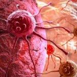 Анализ крови позволит диагностировать рак за 4 года до появления симптомов