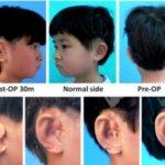 Вырастили уши пятерым детям
