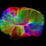 Выращивание Крошечного Мозга