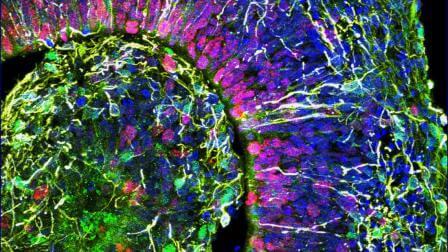 органоиды 2