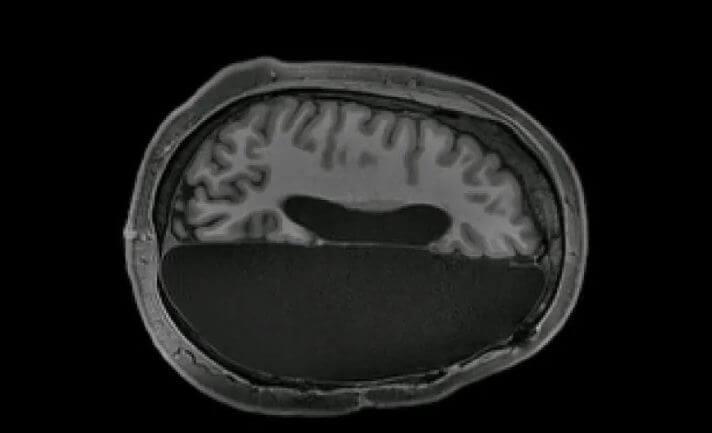 скан МРТ