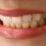 Исследователи разработали способ выращивания новых зубов за 2 месяца