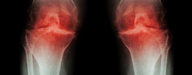 суставы колени остеоартрит