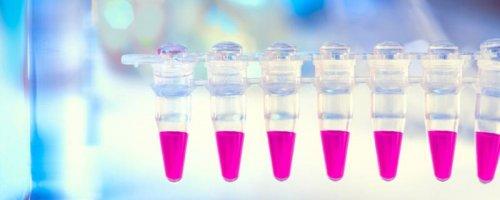 тест-ковид-19-коронавирус