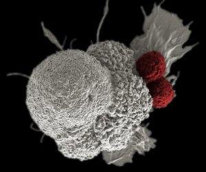 рак клетка лимфоциты